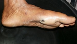 Contoh kaki yang terkena penyakit kusta. Penyakit kusta paling banyak menyerang tangan, kaki, dan hidung